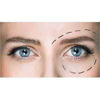 Ενέσιμη μεσοθεραπεία ματιών για τους μαύρους κύκλους