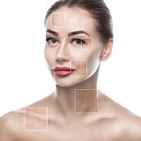 Botox-Dysport